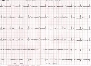 Inte ett felslag, perfekt EKG